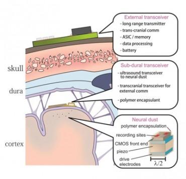Az agyi porszem implantátumok illusztrációja