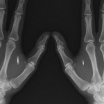 Amal Graafstra kezeiről készült röntgenfelvételek. Photo: MCT